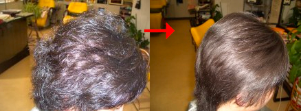 縮毛矯正でストレートヘア